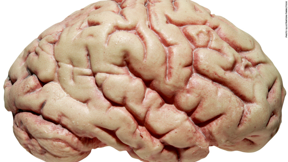 """A sheep brain we were dissecting in neuroanatomy class."" —Rana Lee Adawi Awdish"