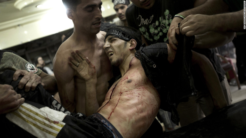 A rebel fighter is carried by his friends and laid on a gurney to be treated for gunshot wounds sustained during heavy battles with government forces in Aleppo on October 1, 2012.