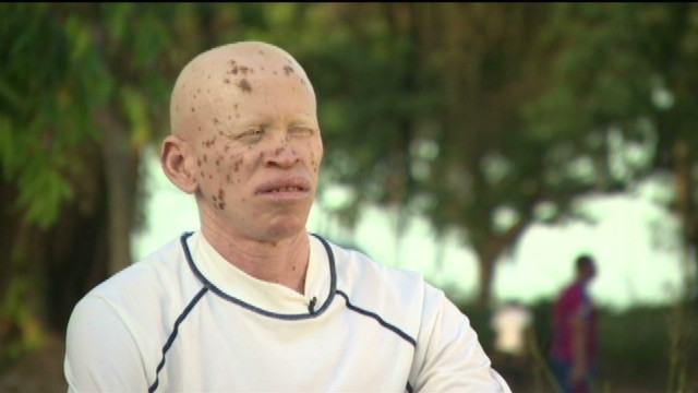 Can football 'heal' Albinos?