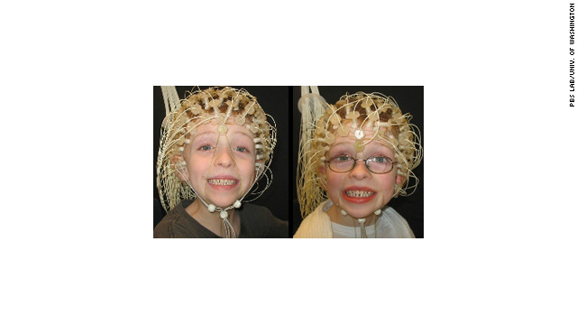 Twins Jacob and Lucas Campbell hooked up to EEGs.