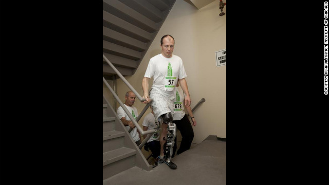 "Zac Vawter scaled Chicago's Willis Tower with what researchers describe as the ""world's first neural-controlled bionic leg."""