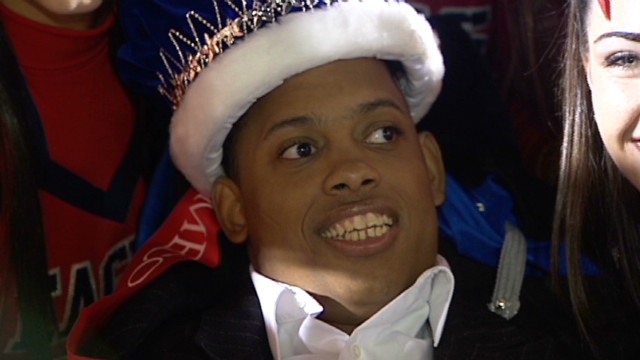 pkg.wpbf.fl.cerebral.palsy.homecoming.king_00015812