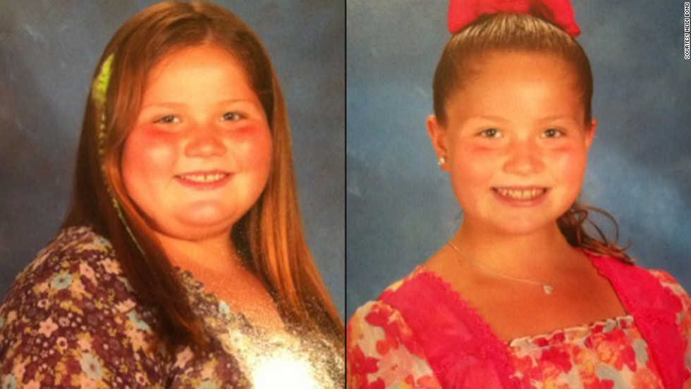 Breanna Bond weighed 186 pounds when she was just 9. In under a year, she dropped 65 pounds.