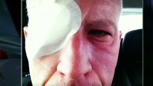 Anderson Cooper on how he went blind