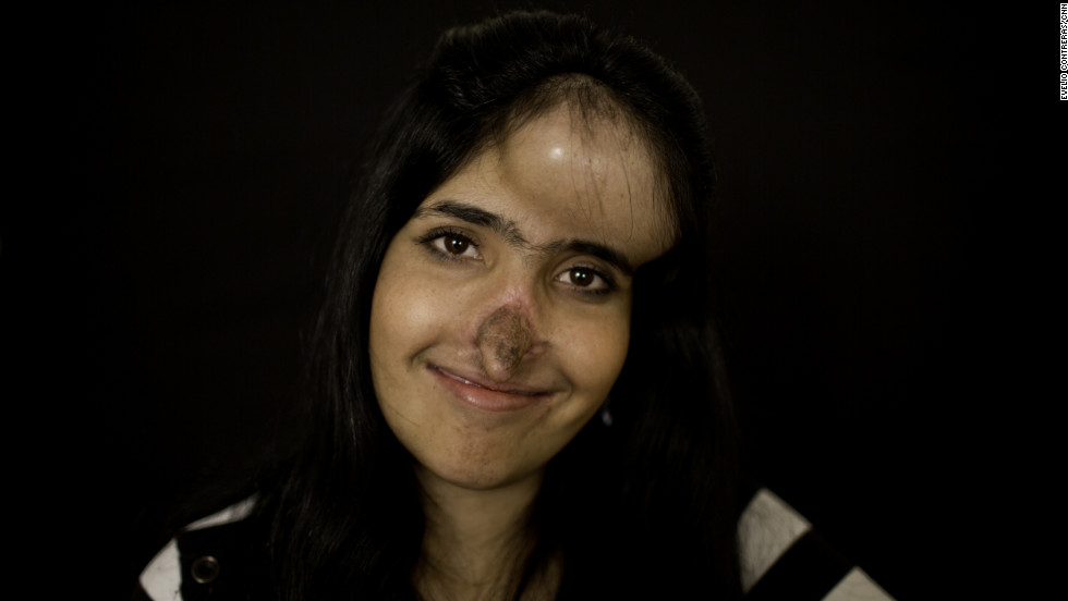 Aesha Mohammadzai is transforming both physically and emotionally. Six months into multistage reconstructive surgery, she's on her way to having the nose she's wanted since she was disfigured and left for dead in Afghanistan. These photos were taken before her latest surgery in December 2012.