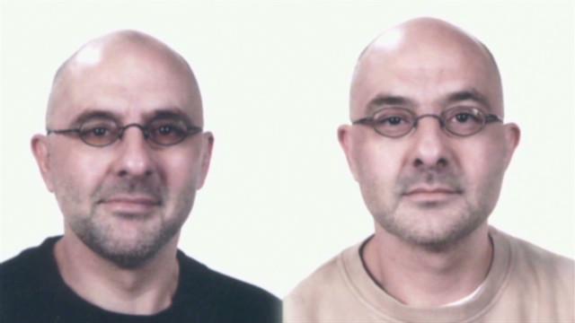 Deaf twins choose death over blindness