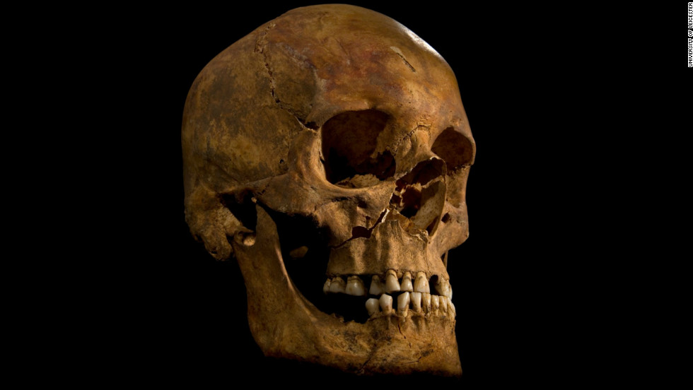 The skull of Richard III.