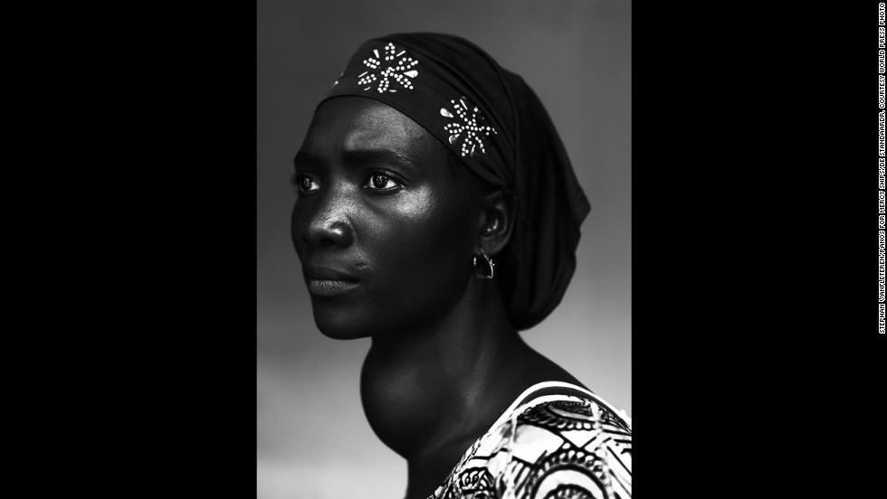 "<strong>First prize people -- staged portraits stories: </strong>Makone Soumaoro, 30, who has a goiter, is photographed in Conakry, Guinea, on October 17, 2012. ""I don't have pain, but I am worried that my neck swells that much,"" she told photographer Stephan Vanfleteren. ""I hope it it is not a tumor because I am a housewife and my man and three children need me."""