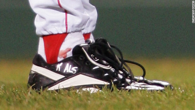 Curt Shilling's ankle injury bleeds through his sock before game 2 of the 2004 World Series on October 24, 2004.