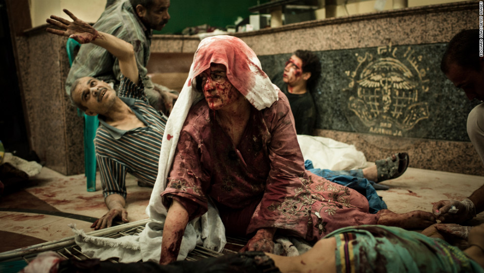 Wounded civilians wait in a field hospital after an air strike on August 21, 2012 in Aleppo.