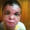 youssif burned face