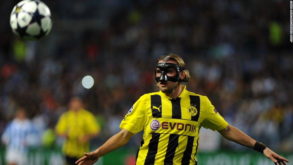 Marcel Schmelzer started in defense for Dortmund despite being forced to wear a mask after breaking his nose at the weekend.
