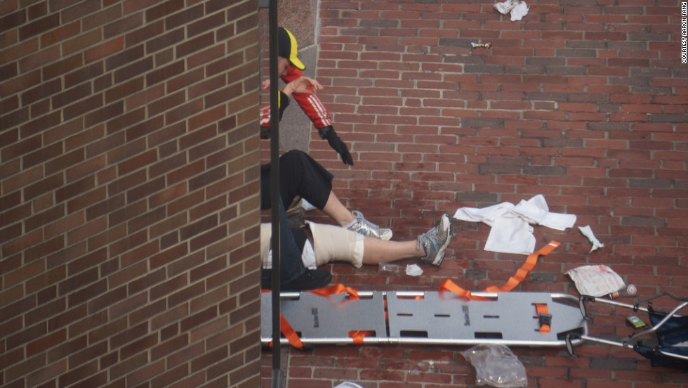 An injured person receives help.