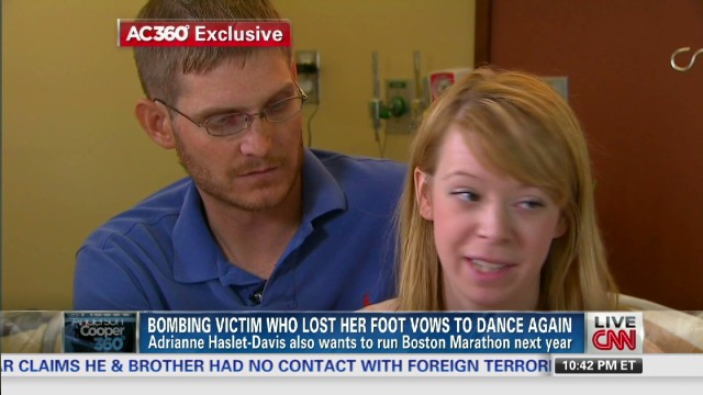 Bombing survivor: I take it day by day