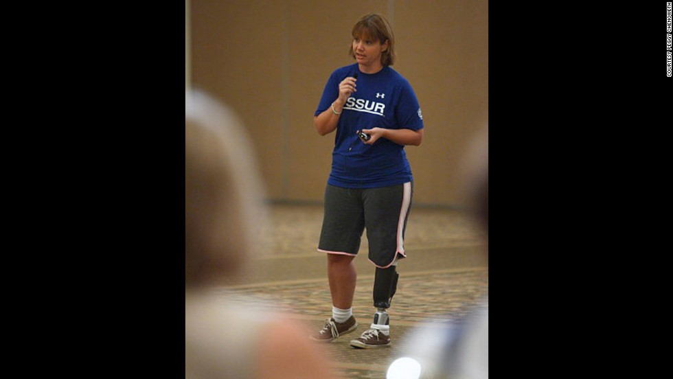 Chenoweth encourages people to display their prosthetics and residual limbs in public to bring awareness to the limb loss community.
