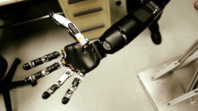 'World's most sophisticated' bionic arm
