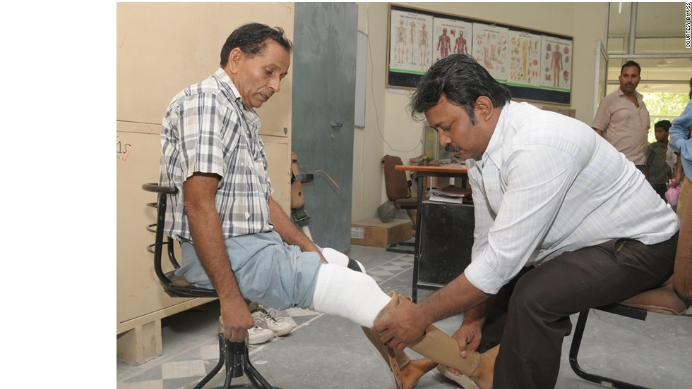 "Indian prosthetics organization, BMVSS, say they can produce an artificial limb for as little as $45. This compares to upwards of $10,000 dollars for a similar procedure in the U.S. Thousands of Indian amputees who would otherwise be unable to afford expensive medical procedures have benefited from BMVSS and their ""Jaipur Foot"" program since it was established in 1975."