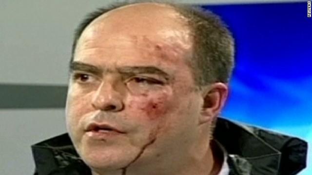 wr venezuela political brawl_00003307.jpg