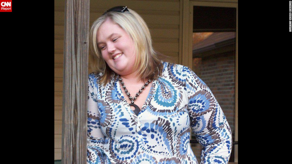 Deidre Robinson never liked to have her picture taken because she was self-conscious about her weight. She has lost more than half her body weight -- 170 pounds -- since this photo was taken in 2008.