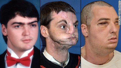 Richard Norris. left, in high school in 1993; center, after suffering a gunshot injury; right, after face transplant surgery.
