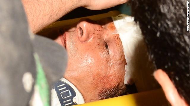 Imran Khan injured in dramatic fall