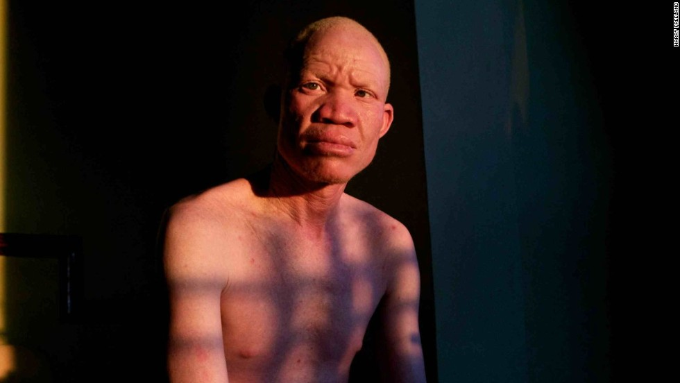 "Josephat Torner is an albino activist from Tanzania. His fight for equality and acceptance of people with his condition has been captured in a new documentary called ""In the Shadow of the Sun."""