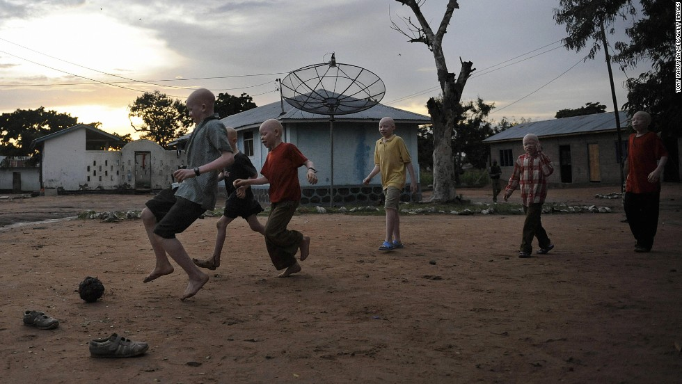 In recent years, there has been an increase in Tanzania in the deaths of albinos. At the heart of the problem, are widespread misconceptions that albinos' body parts bring good luck and wealth.
