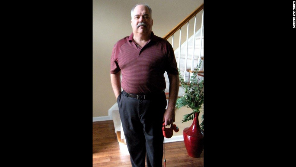 Benzine underwent gastric bypass surgery in February 2012. This photo was taken two months after the procedure.