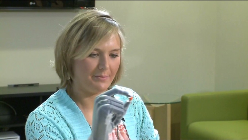 "Last year doctors amputated Aimee Copeland's hands, leg and foot after a flesh-eating bacteria threatened her life. This month, she showed off her <a href=""http://www.cnn.com/2013/05/17/us/georgia-aimee-copeland/index.html"">new bionic hands</a>, which can be positioned using an iPad app. Amputees are living life to the fullest, thanks to advances in prosthetics. From <a href=""http://www.cnn.com/2008/TECH/01/25/bluetooth.legs/"">computer chips that sync joints</a>, to <a href=""http://whatsnext.blogs.cnn.com/2012/03/20/this-week-on-the-next-list-hugh-herr-bionic-man/"">Bluetooth devices</a> that coordinate movement, to <a href=""http://www.cnn.com/2013/04/18/tech/innovation/david-sengeh-sierra-leone-bionic/index.html "">3-D computer models</a> that customize socket designs, new technology has helped these limbs feel as real as possible."
