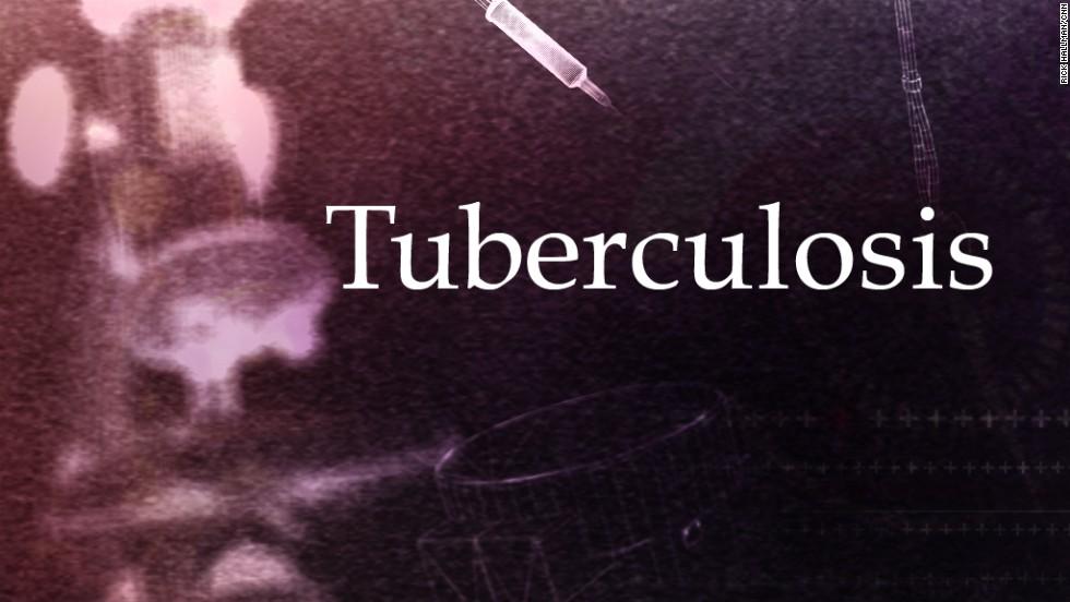 lifeswork cure Tuberculosis