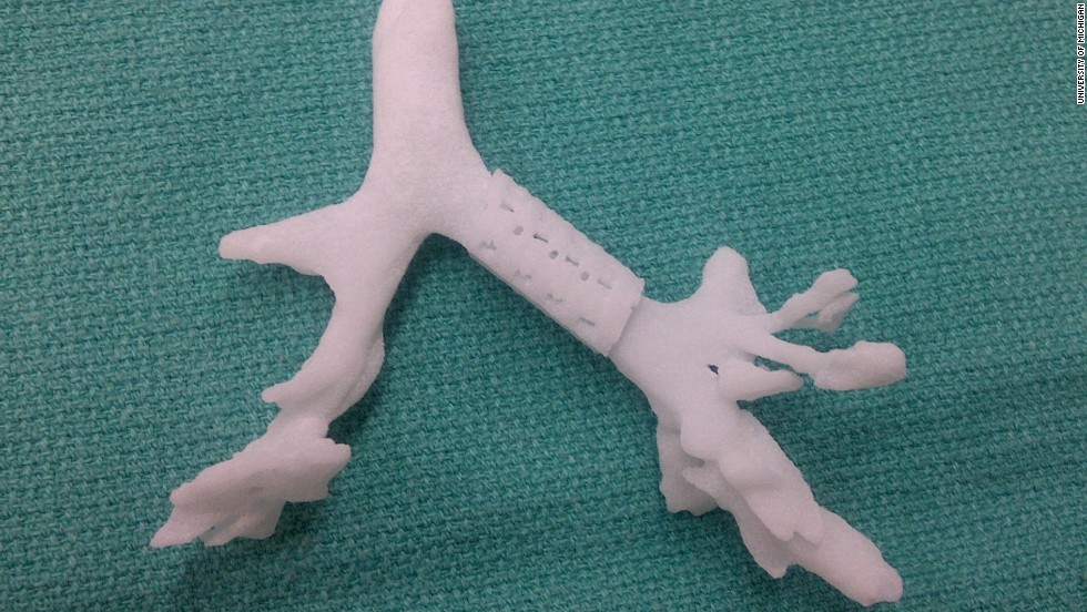 A model of Kaiba's airway, with the biological stent in place.