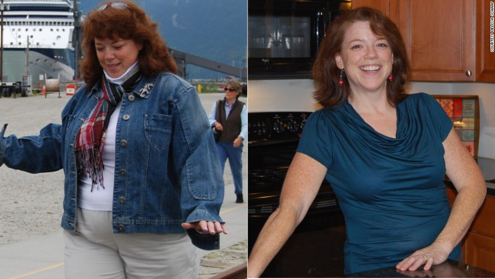 "Melissa Schaaf thought <a href=""http://www.cnn.com/2013/04/26/health/schaaf-weight-loss-cancer/index.html"">losing 80 pounds</a> would be her biggest battle until she was diagnosed with stage I leiomyosarcoma. Schaaf says her gym and healthy eating habits helped get her through chemotherapy."