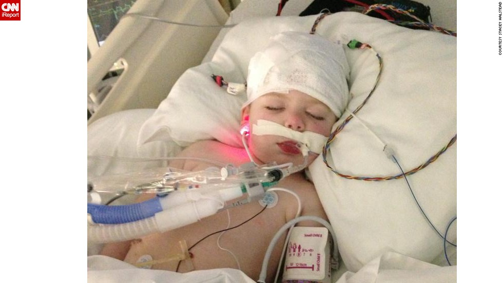 Tripp lies unconscious in the ICU after undergoing one of the several surgeries he endured during his five-month stay at Children's Healthcare of Atlanta.
