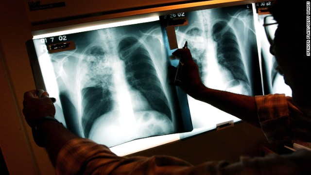 Gupta: TB is a 'very contagious disease'