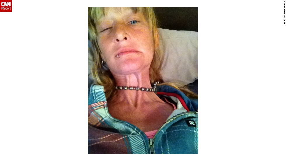 Raines says the pain from dystonia, which is constant, fluctuates between four and eight on a 10-point scale.