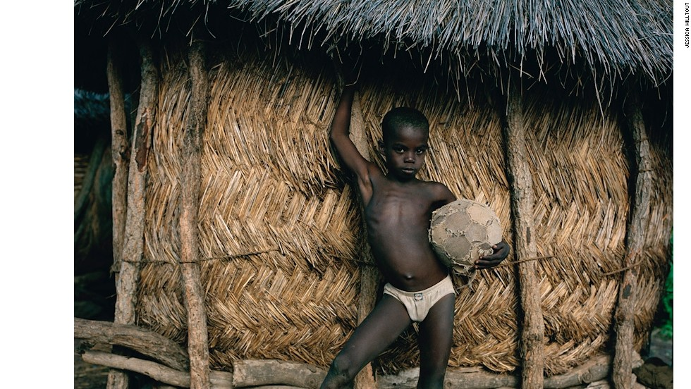 "Soale proudly holds the only ball in the village of Kpenjipei, Ghana. This ball was stitched up numerous times and had to be re-inflated during matches. Hilltout said: ""This ball was hanging onto life for the sake of a whole village.  It almost started to have human qualities."""