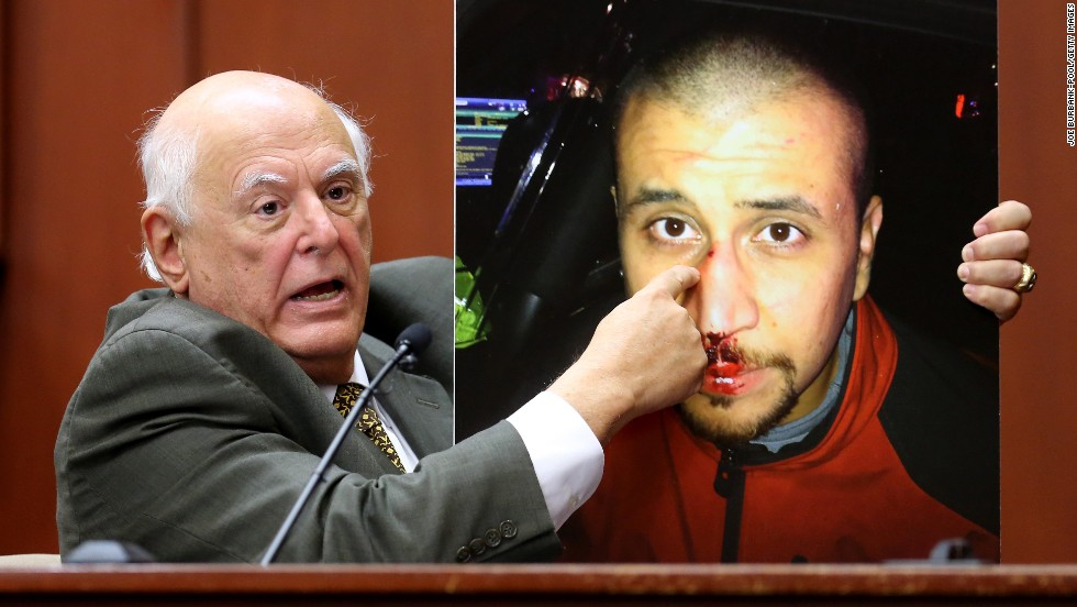 Dr. Vincent Di Maio, a forensic pathologist and gunshot wound expert, describes Zimmerman's injuries while testifying for the defense Tuesday, July 9.