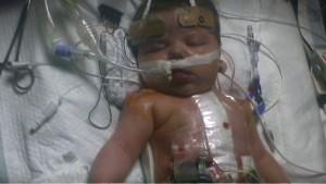 Surgical Death Rates For Babies Kept Secret From Parents