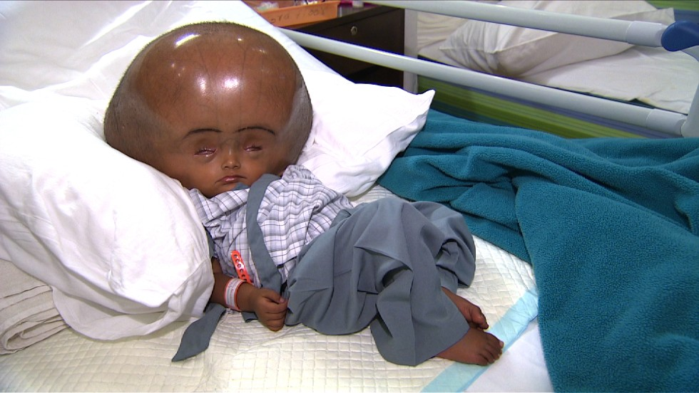 Four months ago, the circumference of Roona Begum's head was 94 centimeters -- almost triple the size of a normal baby -- due to ten liters of excess fluid inside her brain. Born in a remote village in northeastern India, Roona was diagnosed with an extreme form of hydrocephalus and was given only a few months to live.