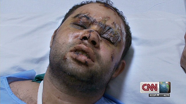 Egyptian police wounded in protest