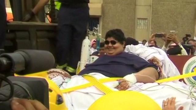nr saudi obese man gets help_00003302.jpg