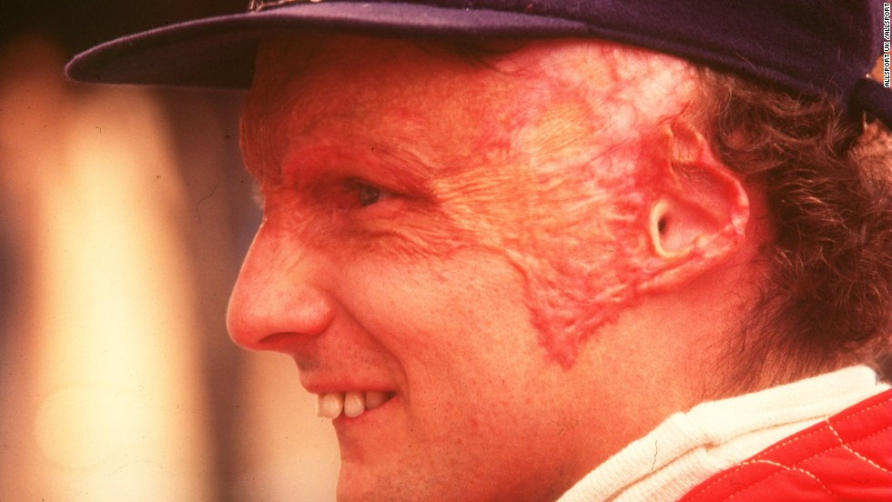 Lauda's crash at the Nurburgring at the beginning of August was the defining moment of the 1976 season. He suffered horrific burns and nearly lost his life but somehow found the courage to return to the track at Monza just 43 days later. The Ferrari driver conquered his fears and finished fourth to the amazement of everyone and the delight of the Tifosi.