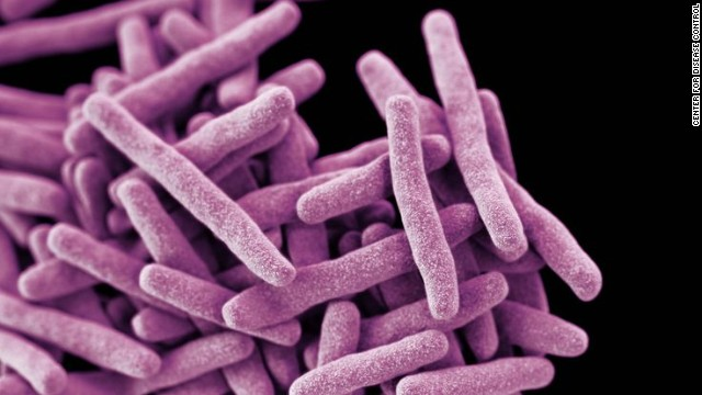 Tuberculosis scare on airline flight