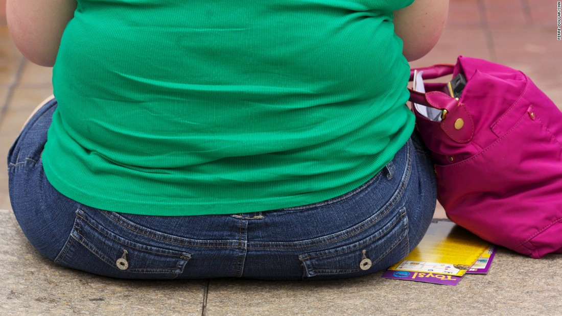 Overweight pregnancy increases risk of birth defects, study says