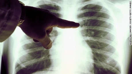 Cuban researchers battle lung cancer with a vaccine