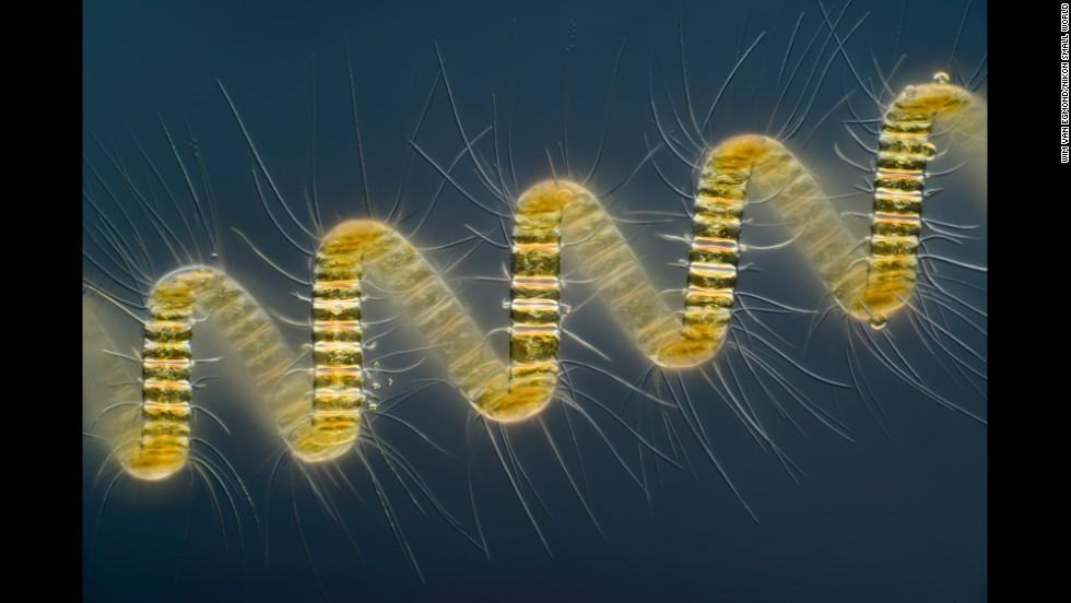 Mr. Wim van Egmond; Micropolitan Museum; Chaetoceros debilis (marine diatom), a colonial plankton organism
