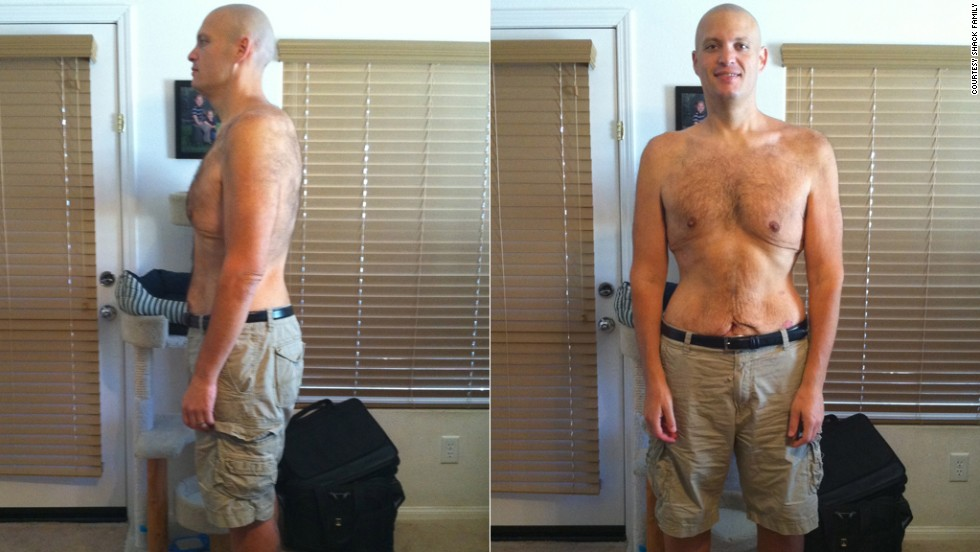In 14 months, Shack dropped 265 pounds. In September 2010, he weighed 235 pounds.
