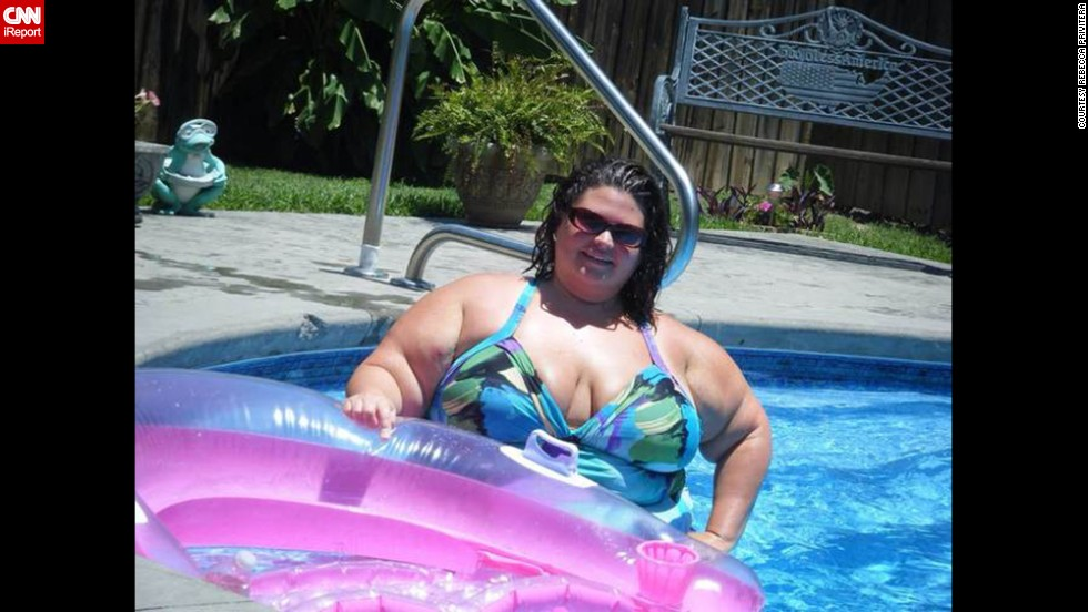 During her honeymoon in Florida, Privitera wasn't able to go to the beach for long periods because she was so uncomfortable. She was at her peak weight of 381 pounds and remembers crying in the car on the way home.