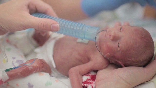 vo dads time lapse of preemie baby viral video _00012009.jpg