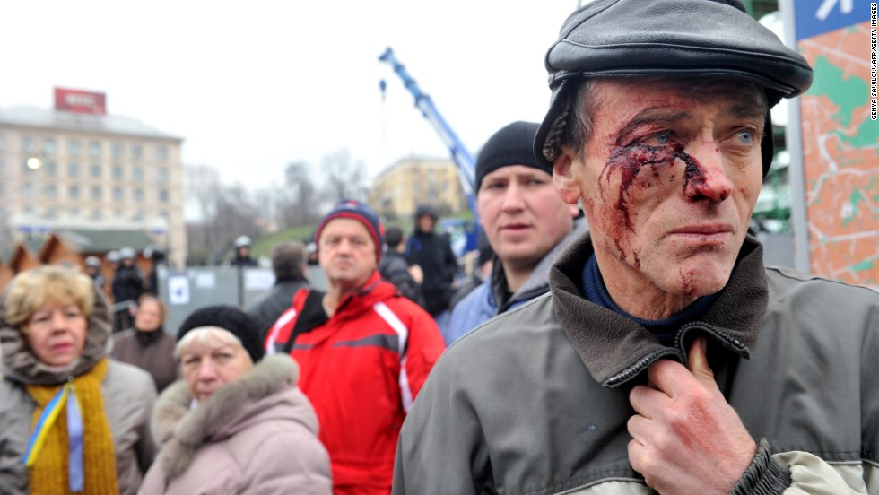 A protester injured in clashes with police stands on Independence Square on November 30.